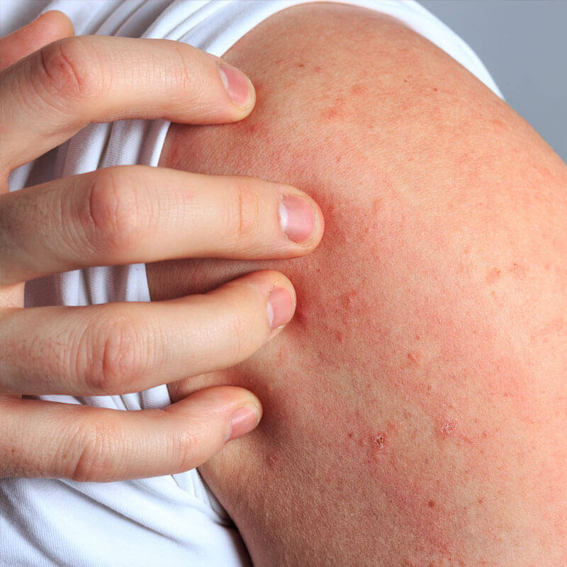 Causes of a Histamine Intolerance