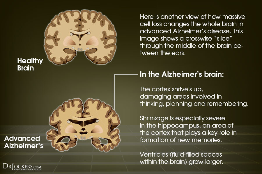 Good Brain vs Alzheimers Brain