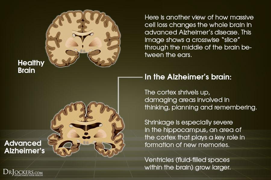 Good Brain vs Alzheimers Brain