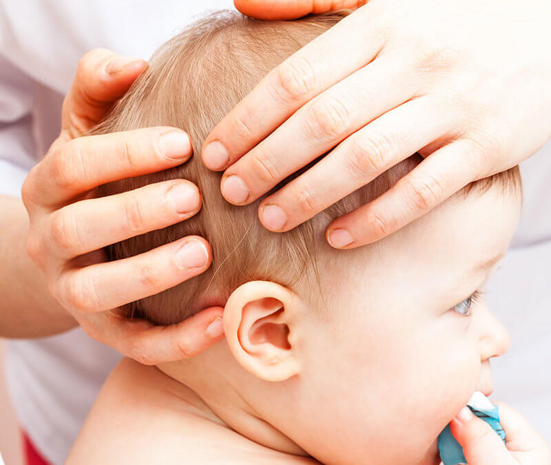 How to Get Rid of Cradle Cap: A Natural Remedy